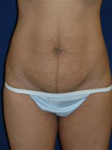 Tummy Tuck Before Photo by Michael Eisemann, MD; Houston, TX - Case 27453