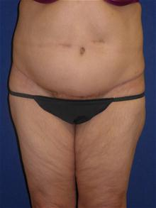 Tummy Tuck After Photo by Michael Eisemann, MD; Houston, TX - Case 27454