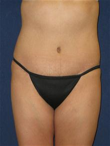 Tummy Tuck After Photo by Michael Eisemann, MD; Houston, TX - Case 27455