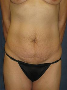 Tummy Tuck Before Photo by Michael Eisemann, MD; Houston, TX - Case 27455