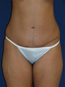 Tummy Tuck After Photo by Michael Eisemann, MD; Houston, TX - Case 27533