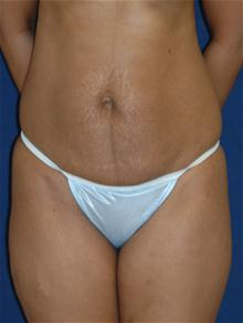 Tummy Tuck Before Photo by Michael Eisemann, MD; Houston, TX - Case 27533