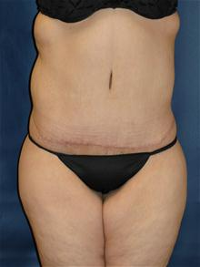 Tummy Tuck After Photo by Michael Eisemann, MD; Houston, TX - Case 27534