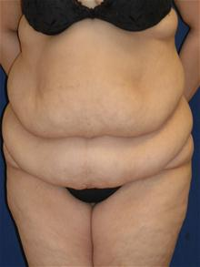 Tummy Tuck Before Photo by Michael Eisemann, MD; Houston, TX - Case 27534