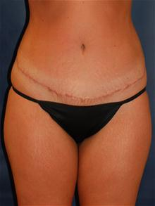Tummy Tuck After Photo by Michael Eisemann, MD; Houston, TX - Case 27535