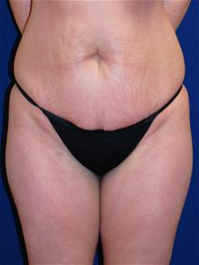 Tummy Tuck Before Photo by Michael Eisemann, MD; Houston, TX - Case 27535
