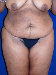 Tummy Tuck Before Photo by Michael Eisemann, MD; Houston, TX - Case 27536