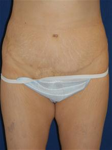 Tummy Tuck After Photo by Michael Eisemann, MD; Houston, TX - Case 27537
