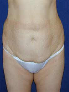 Tummy Tuck Before Photo by Michael Eisemann, MD; Houston, TX - Case 27537