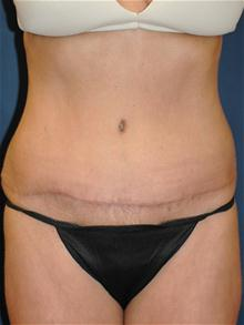 Tummy Tuck After Photo by Michael Eisemann, MD; Houston, TX - Case 27538