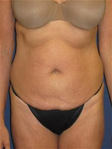 Tummy Tuck Before Photo by Michael Eisemann, MD; Houston, TX - Case 27538