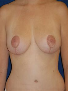 Breast Lift After Photo by Michael Eisemann, MD; Houston, TX - Case 27542