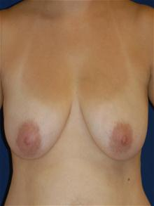 Breast Lift Before Photo by Michael Eisemann, MD; Houston, TX - Case 27542