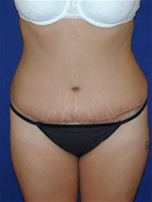 Tummy Tuck After Photo by Michael Eisemann, MD; Houston, TX - Case 27543