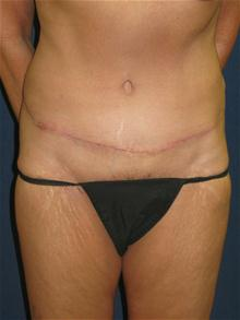 Tummy Tuck After Photo by Michael Eisemann, MD; Houston, TX - Case 27544