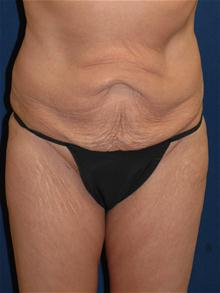Tummy Tuck Before Photo by Michael Eisemann, MD; Houston, TX - Case 27544