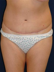 Tummy Tuck After Photo by Michael Eisemann, MD; Houston, TX - Case 27545