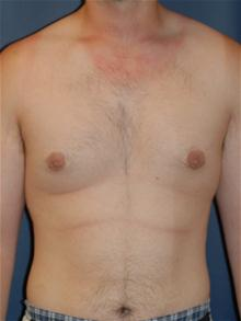 Male Breast Reduction After Photo by Michael Eisemann, MD; Houston, TX - Case 27546