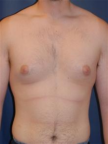 Male Breast Reduction Before Photo by Michael Eisemann, MD; Houston, TX - Case 27546