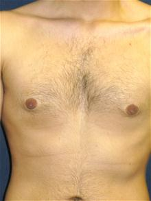 Male Breast Reduction After Photo by Michael Eisemann, MD; Houston, TX - Case 27547
