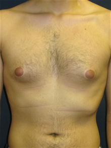 Male Breast Reduction Before Photo by Michael Eisemann, MD; Houston, TX - Case 27547