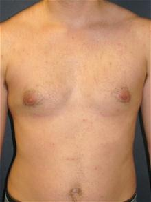 Male Breast Reduction After Photo by Michael Eisemann, MD; Houston, TX - Case 27548