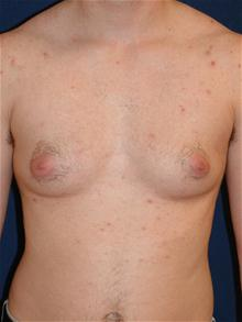Male Breast Reduction Before Photo by Michael Eisemann, MD; Houston, TX - Case 27548