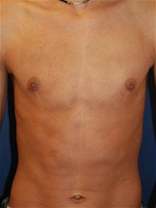 Male Breast Reduction After Photo by Michael Eisemann, MD; Houston, TX - Case 27549