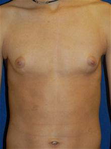 Male Breast Reduction Before Photo by Michael Eisemann, MD; Houston, TX - Case 27549