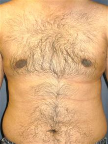 Male Breast Reduction After Photo by Michael Eisemann, MD; Houston, TX - Case 27565