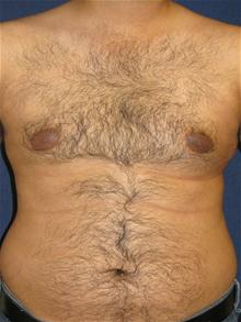 Male Breast Reduction Before Photo by Michael Eisemann, MD; Houston, TX - Case 27565