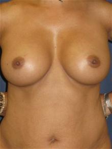 Breast Augmentation After Photo by Michael Eisemann, MD; Houston, TX - Case 27595
