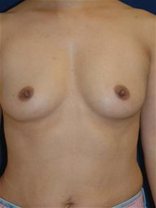 Breast Augmentation Before Photo by Michael Eisemann, MD; Houston, TX - Case 27595