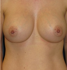 Breast Augmentation After Photo by Michael Eisemann, MD; Houston, TX - Case 27596