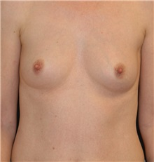 Breast Augmentation Before Photo by Michael Eisemann, MD; Houston, TX - Case 27596