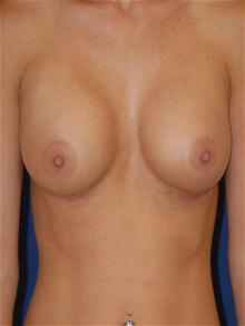 Breast Augmentation After Photo by Michael Eisemann, MD; Houston, TX - Case 27598