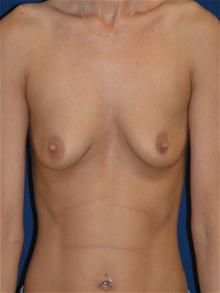 Breast Augmentation Before Photo by Michael Eisemann, MD; Houston, TX - Case 27598