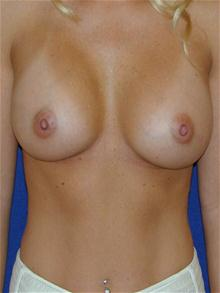 Breast Augmentation After Photo by Michael Eisemann, MD; Houston, TX - Case 27600