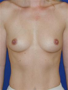 Breast Augmentation Before Photo by Michael Eisemann, MD; Houston, TX - Case 27600