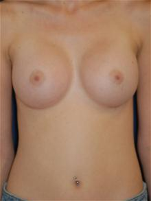 Breast Augmentation After Photo by Michael Eisemann, MD; Houston, TX - Case 27601