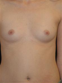 Breast Augmentation Before Photo by Michael Eisemann, MD; Houston, TX - Case 27601