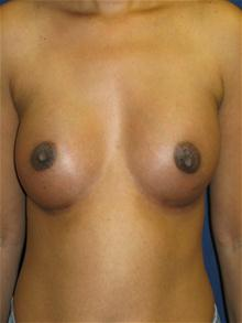 Breast Augmentation After Photo by Michael Eisemann, MD; Houston, TX - Case 27602
