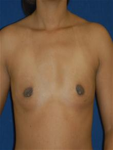 Breast Augmentation Before Photo by Michael Eisemann, MD; Houston, TX - Case 27602