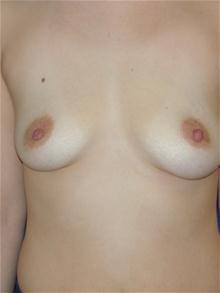 Breast Augmentation Before Photo by Michael Eisemann, MD; Houston, TX - Case 27603