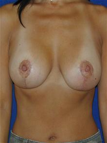 Breast Lift After Photo by Michael Eisemann, MD; Houston, TX - Case 27604