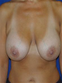 Breast Lift Before Photo by Michael Eisemann, MD; Houston, TX - Case 27604