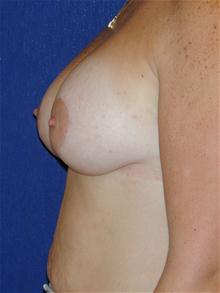 Breast Lift After Photo by Michael Eisemann, MD; Houston, TX - Case 27605