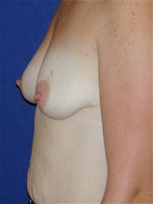 Breast Lift Before Photo by Michael Eisemann, MD; Houston, TX - Case 27605