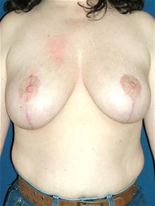 Breast Lift After Photo by Michael Eisemann, MD; Houston, TX - Case 27608