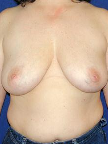 Breast Lift Before Photo by Michael Eisemann, MD; Houston, TX - Case 27608